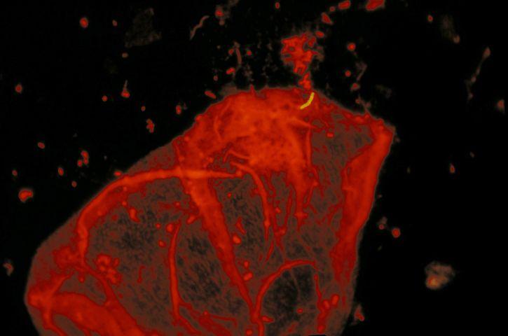 micobatteri, la tubercolosi, fluorescente, auramina, acridina, arancione, di contrasto