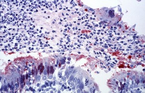 cytoarchitectural, trachea, bronchioles, brought, nipah virus, infection