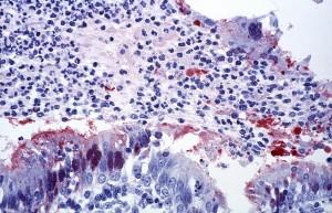 cytoarchitecturales, de la trachée, les bronchioles, a, le virus Nipah, infection