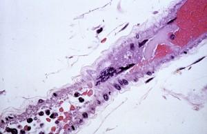 gigante, multinucleate, endoteliali, cellule, centro, immagine