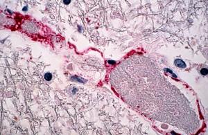 l'infezione, il virus Nipah, associata, encefalite, un'infiammazione, il cervello