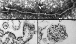 ultrastrutturali, la morfologia, il virus Nipah
