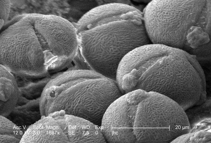 skeniranje, elektronskog mikroskopa, morfološke, ultrastruktura, zbirka