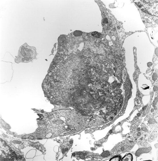 capillaire, lumière, partiellement, occlus, thrombus, flanquement, thrombus, hypertrophique, endothéliales, cellules