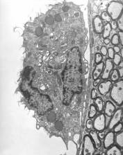 expérimentalement, infection, par voie intraveineuse, Orientia, tsutsugamushi, rickettsies, micro, organismes