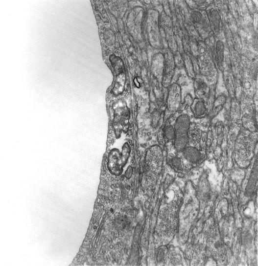 larve, trombiculides, acariens, l'hébergement, tsutsugamushi, pathogène, attaques, endothéliales, les cellules, ce qui entraîne, vascularite