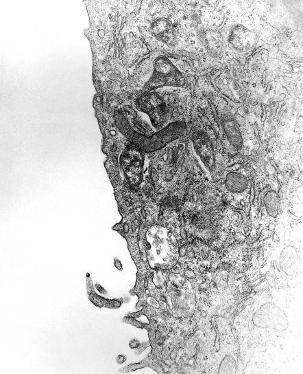 micrographie, organisme, phagocytaire, vacuole