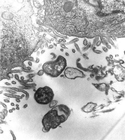 θάμνοι, τύφος, οξείας, εμπύρετων, ασθένεια, orientia, tsutsugamushi