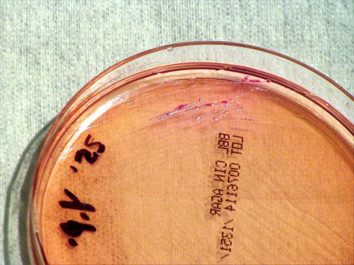 грам, отрицателни, yersinia pestis, бактерии, отглеждани, температура