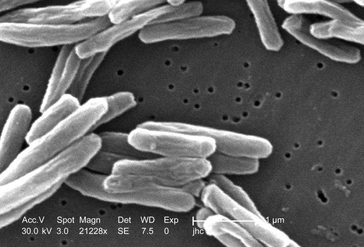 obligátní, aerobní, organismus, tuberkulóza, přežít, prostředí, kyslík