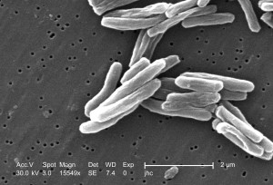 gram, positif, les bactéries, la tuberculose, les bactéries