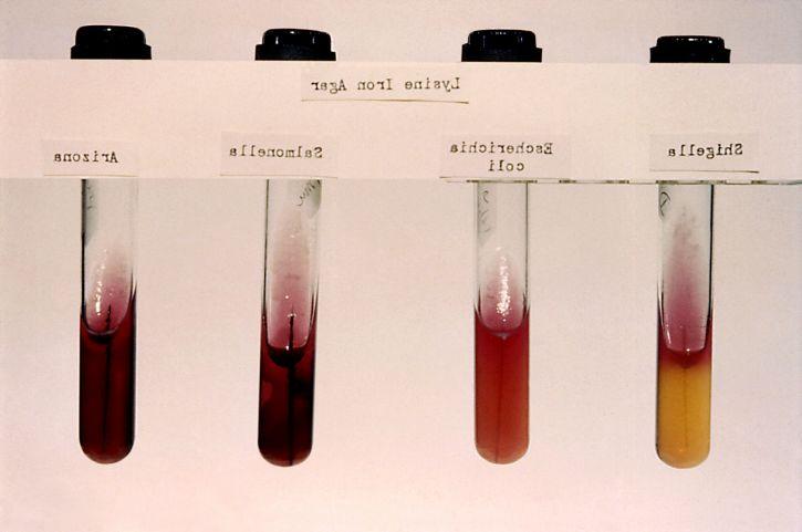 arizona, coli, Salmonella, Shigella, la lysine, le fer, l'agar, stab, cultures