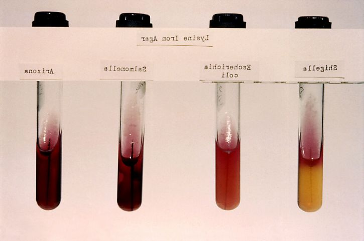 arizona, coli, salmonella, shigella, lysine, iron, agar, stab, cultures