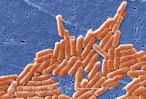 Salmoneloze