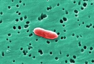 gram, negative, sebaldella, termitidis, bacterium