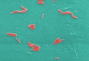 mikroskopa, brojevi, grama, negativan, sebaldella termitidis, bakterije