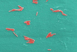 micrographie, nombres, gram, négatif, sebaldella, termitidis, bactéries