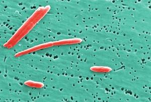 sebaldella termitidis, uplatio, 1986, bacteroides termitidis