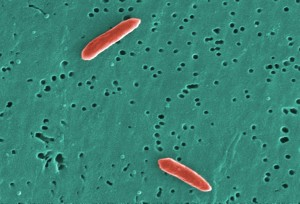 gram, negative, sebaldella, termitidis, bacteria