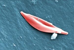 Srp, ćelija, bolest, nasljeđuju dva, srpasti, stanica, gena, jedan, roditelj