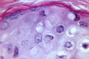 cytoarchitectural, manifesti, confini, il vaiolo, Variola, maculopapulare, lesione