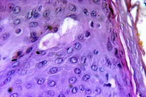 magnified, 730x, photomicrograph, cytoarchitectural, pathologic