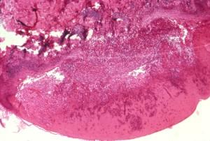 Микрография, показва, хистологични, човешкото, кожата, инфекция, вариола, петното