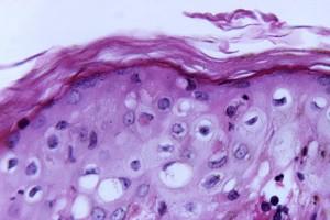 reducción, lo normal, grueso, estrato córneo, la viruela, la viruela