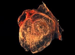 smallpox, virus, pocks, chorioallantoic, membrane, developing, embryonic, chick