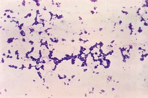 photomicrograph, spherical, cocci, gram, positive, staphylococcus, aureus, bacteria, magnified, 250x