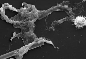 étrangement, beau, microorganisme, affichage, extérieur, surface, cloutés, de nombreuses projections,