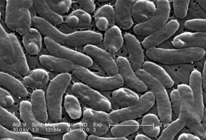 regroupement, vibrion, vulnificus, bactéries