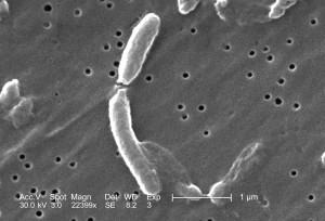 micrograph, two, vibrio, cholerae, bacteria