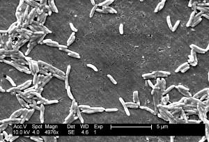 în formă, făt, bacterii, făt, intestinalis, vibrio, făt, intestinalis