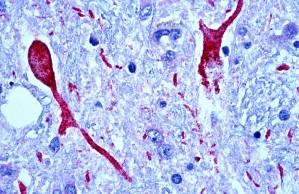 cerveau, le tissu, à l'ouest, le Nil, l'encéphalite, le patient